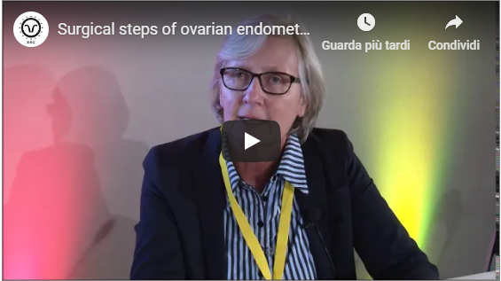Prof. M.Nisolle – Surgical steps of ovarian endometriomas