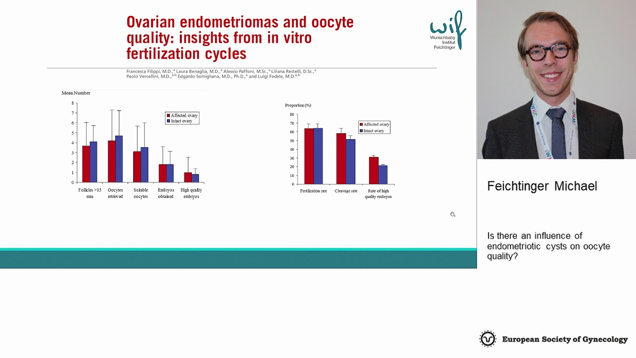 Feichtinger Michael Feichtinger Wilfried,: Is there an influence of endometriotic cysts on oocyte quality?