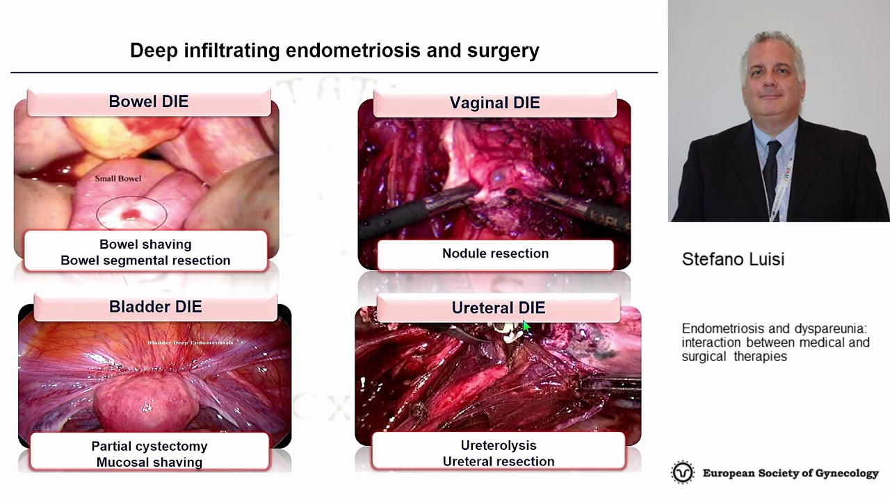 Stefano Luisi: Endometriosis and dyspareunia: interaction between medical and surgical  therapies